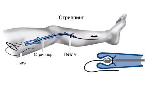 Стриппинг - один из этапов комплексной флебэктомии