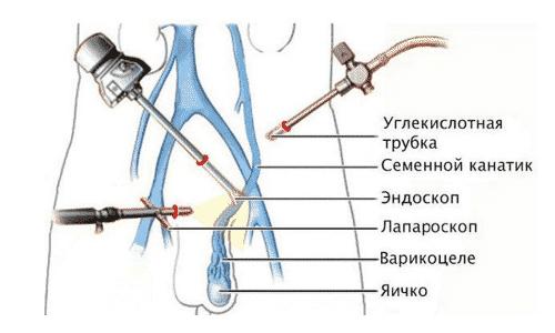 Операция по Иваниссевичу считается классическим методом лечения
