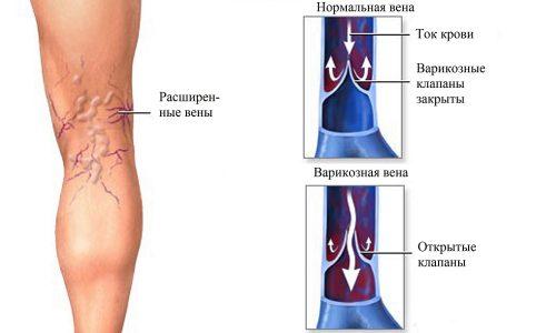 Профилактика варикоза поможет предотвратить изменение вен, которое выражается в их удлинении, расширении, приобретении извилистости и появлении узелковых образований